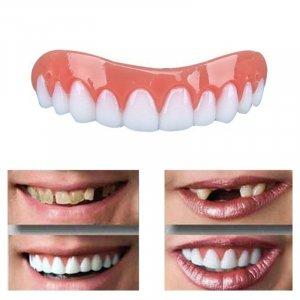 ציפוי חניכיים ושיניים מושלמות ברגע