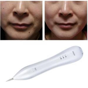 מנקה נקודות חן ושומות מעור הפנים ללא כאב